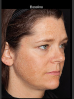 Before Photo Hyperpigmentation - Professional Peel - Prejuvenation Before & After