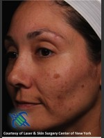 Before Photo Pigment Facial Skin Rejuvenation - ZALEA Before & After