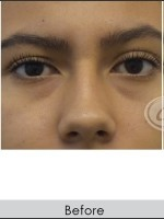 Before Photo Undereye Filler - ZALEA Before & After
