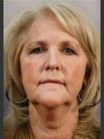 Before Photo 58 Year Old Female: Facelift - ZALEA Before & After