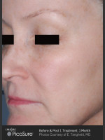 After Photo Full Face Wrinkle Treatment With PicoSure - ZALEA Before & After