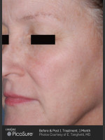 Before Photo Full Face Wrinkle Treatment With PicoSure - ZALEA Before & After