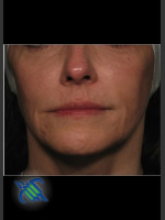 Before Photo Facial Laxity of Lower Face with Profound - ZALEA Before & After