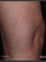 Before Photo Leg Vein Clearance Using Excel V - ZALEA Before & After