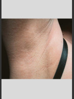 After Photo Treatment of Underarms with Gentle Laser - ZALEA Before & After