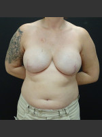 After Photo Breast Reconstruction Case #1 - Prejuvenation Before & After