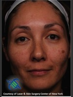 Before Photo Treatment of Melasma - Prejuvenation Before & After