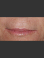 After Photo Treatment of Perioral Wrinkles - Prejuvenation Before & After