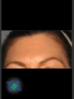 After Photo Treatment of Forehead Finelines and Wrinkles - ZALEA Before & After