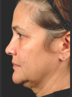 Before Photo Thermage Procedure Before and After II - ZALEA Before & After