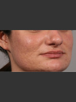 After Photo 3DEEP Intensif Microneedling Skin Remodeling #2 - ZALEA Before & After