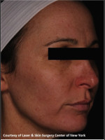 After Photo Treatment of Facial Pigmentation - Prejuvenation Before & After