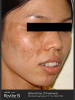 Before Photo Before and After Revlite SI Series of Treatments for Melasma - Prejuvenation Before & After
