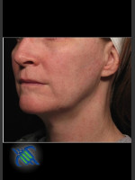 After Photo Profound Facial Laxity Treatment - ZALEA Before & After