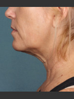 After Photo Kybella Treatment 54 Year Old Female - ZALEA Before & After