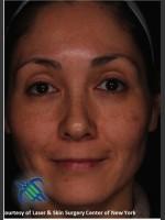 After Photo Treatment of Melasma - Prejuvenation Before & After