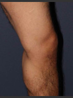 After Photo Non-surgical Leg Vein Treatment - ZALEA Before & After