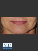 After Photo Lip Filler 133 - ZALEA Before & After