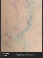 Before Photo Leg Vein Clearance Using Icon - ZALEA Before & After