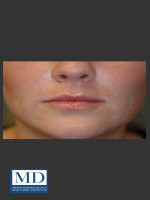 After Photo Lip Filler 134 - ZALEA Before & After