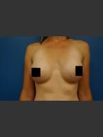 After Photo Breast Augmentation - Prejuvenation Before & After