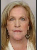 After Photo 58 Year Old Female: Facelift - ZALEA Before & After
