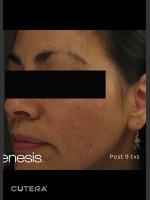 After Photo Melasma Before & After Photo after Laser Genesis - Prejuvenation Before & After