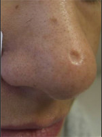 Before Photo Treatment of Nose Acne Scar - Prejuvenation Before & After