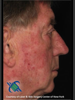 Before Photo Male Full Face Fraxel Treament - Prejuvenation Before & After