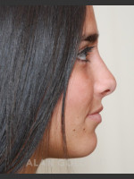 After Photo Rhinoplasty 1676 Side View - ZALEA Before & After