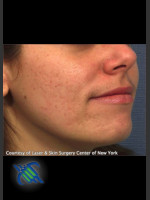 Before Photo Facial Acne Scaring Treatment - Right Side  - Prejuvenation Before & After