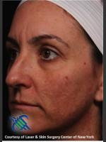 Before Photo Left Side Full Face Skin Rejuvenation - ZALEA Before & After