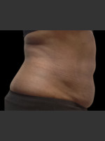 After Photo Body Contouring Treatment #120 - ZALEA Before & After