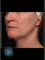 Before Photo Profound Facial Laxity Treatment - ZALEA Before & After