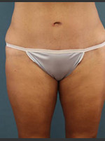 After Photo Before and After Tummy Tuck - ZALEA Before & After