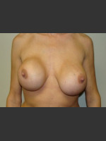 Before Photo Breast Revision 5654 - Prejuvenation Before & After