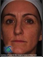 After Photo Full Face Skin Rejuvenation - ZALEA Before & After