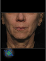 After Photo Treatment of Facial Laxity with Profound - ZALEA Before & After