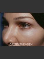 After Photo Periorbital Rejuvenation - Patient 7 - ZALEA Before & After