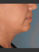 Before Photo Kybella Treatment 34 Year Old Female - ZALEA Before & After