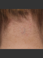 After Photo Treatment of Neck Tattoo - Prejuvenation Before & After