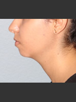 Before Photo Chin Augmentation - Prejuvenation Before & After