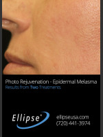 After Photo Treatment of Pigmentation and Melasma  - ZALEA Before & After