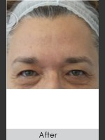 After Photo Dysport and Filler for Forehead Etched Lines - ZALEA Before & After