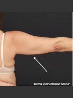 After Photo CoolSculpting on Woman's Upper Arm - ZALEA Before & After