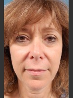 Before Photo Facelift Surgery - ZALEA Before & After