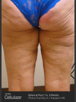 After Photo Cellulaze Cellulite Treatment - ZALEA Before & After
