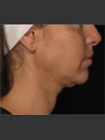 Before Photo Treatment of Neck Contour - Prejuvenation Before & After