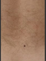 Before Photo Quanta Eterna IPL Hair Removal #75 - Prejuvenation Before & After