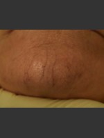 Before Photo Cutera Laser Treatment - ZALEA Before & After